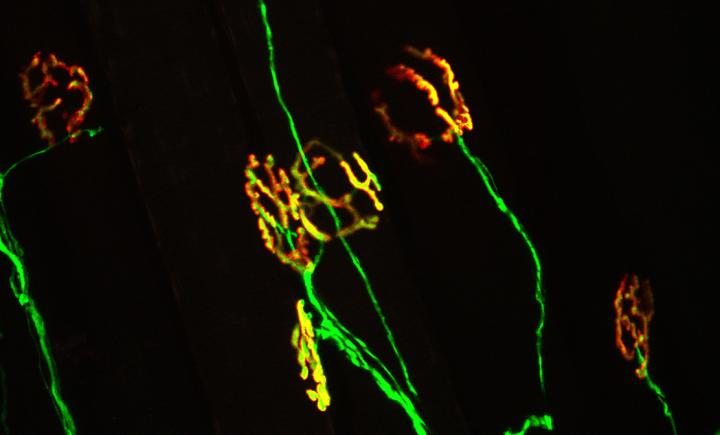 A healthy neuromuscular junction (yellow) is characterized by perfect apposition between the motor neuron (green) and nicotinic acetylcholine receptors on the muscle (red). This synapse is damaged early in ALS, a change believed to contribute the onset and progression of the disease. / Credit: Virginia Tech Carilion Research Institute