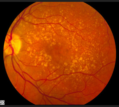 Age-Related Macular Degeneration  A fundus photo showing intermediate age-related macular degeneration. /Credit National Eye Institute, National Institutes of Health.