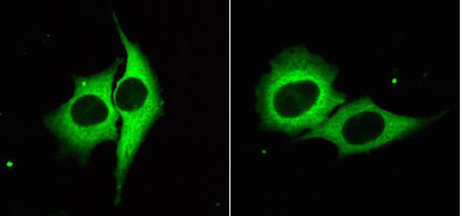Glowing cells express GFP, which scientists used along with gene-editing techniques to uncover a new microRNA mechanism. / Credit: UT Southwestern Medical Center