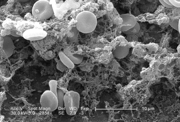 A scanning electron micrograph (SEM) depicted a number of red blood cells clotting on a vascular catheter.