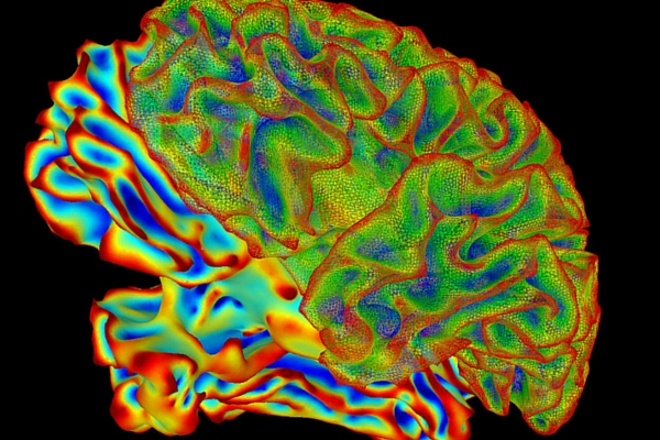 High powered MRIs and holographic technology is what's new in brain imaging