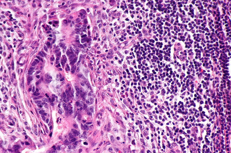 Micrograph of lymph node with colorectal carcinoma. Credit: Wikimedia user Nephron
