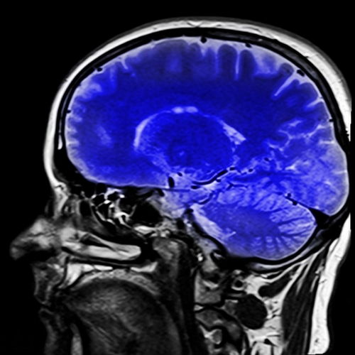 Seeing Depression and Anxiety on a Brain Scan | Neuroscience
