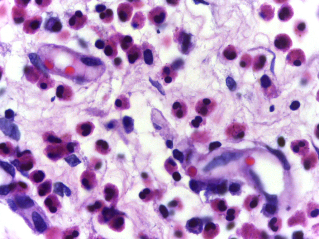 Micrograph showing high power view of Eosinophils. Credit: Department of Pathology, Calicut Medical College