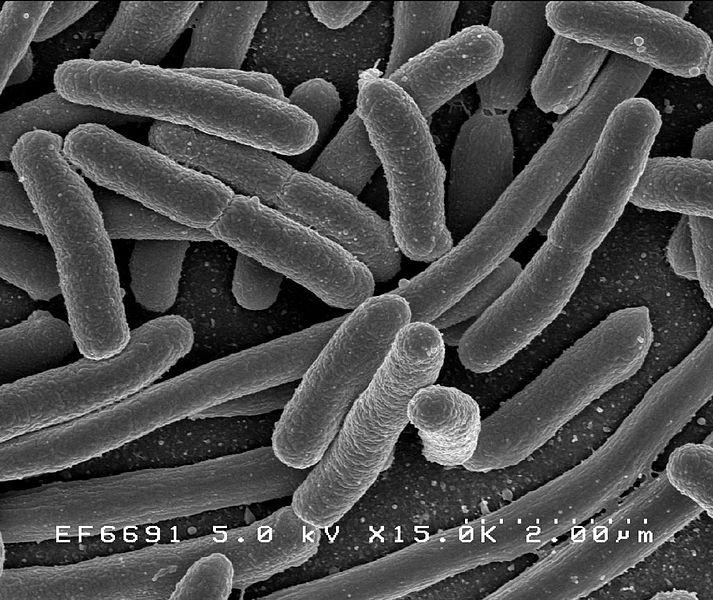 Scanning electron micrograph of Escherichia coli / Credit: Rocky Mountain Laboratories, NIAID, NIH