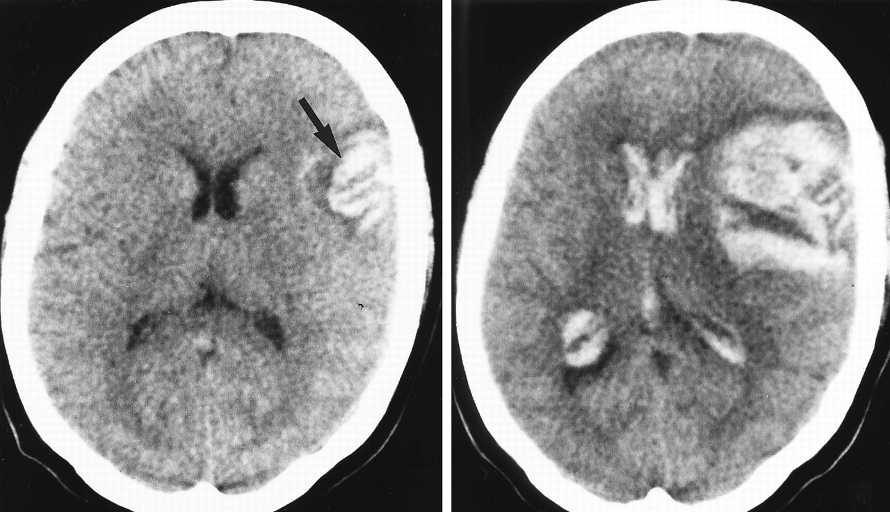 progression of intracerebral brain hemorrhage, arrow points to a cortical hematoma