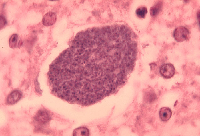 Histopathology of malaria parasite forming in liver. Credit: CDC