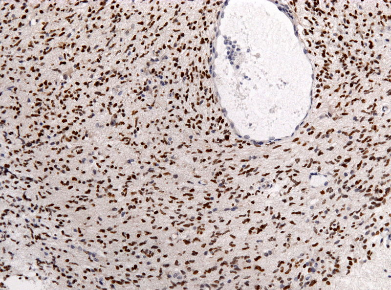 Pathology specimen of a glioma of the midline. Credit: Jensflorian