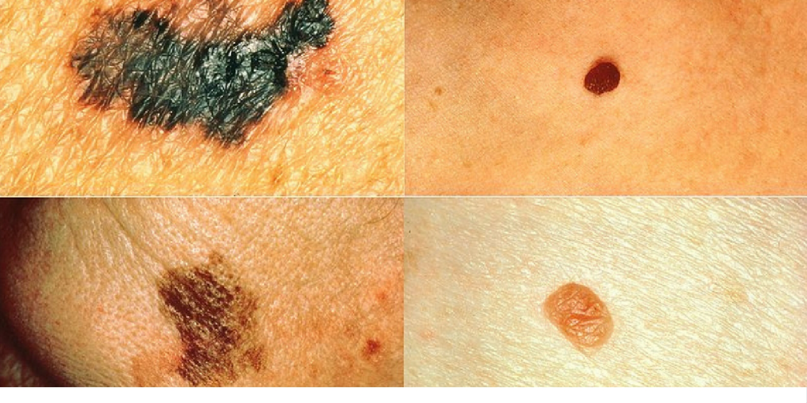 Left: melanomas. Right: normal moles. \\ Image credit: Wikipedia.org