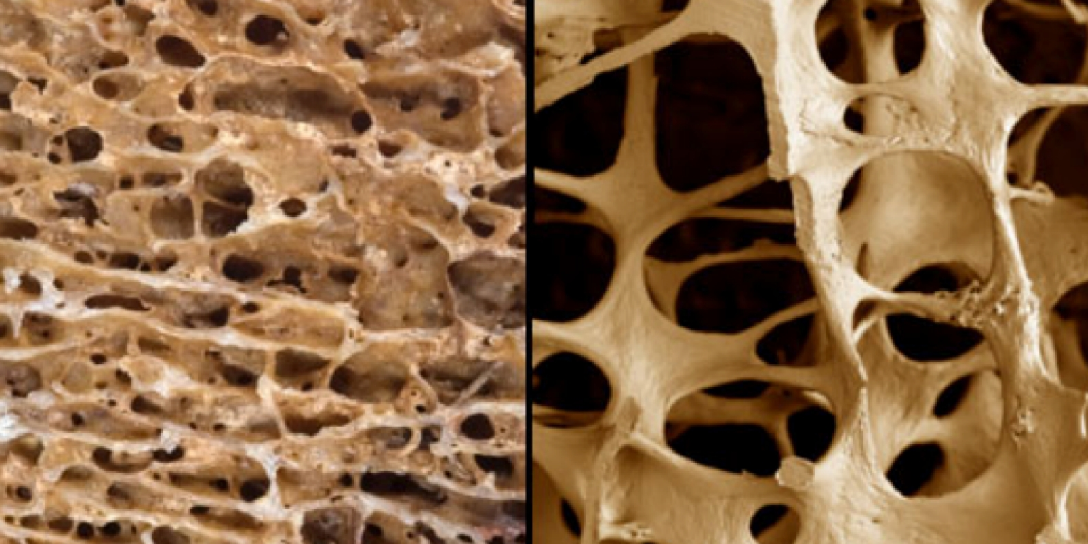 Left: normal bones. Right: bones with osteoporosis
