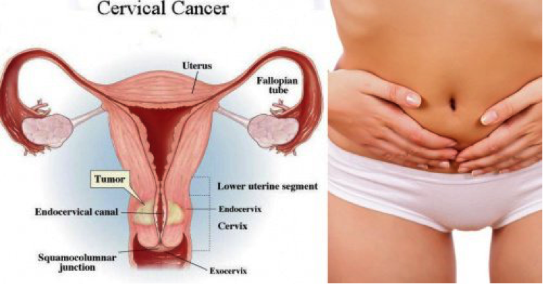 Protein discovery could lead to new drug targets for cervical cancer