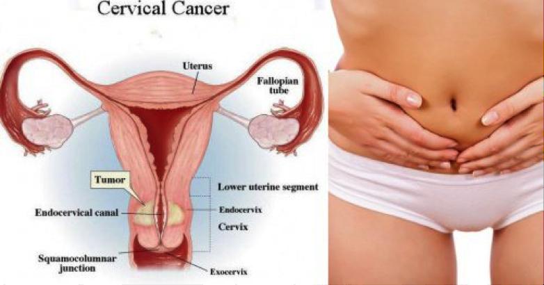 Scientists Find a Protein that Suppresses Cervical Cancer Gr