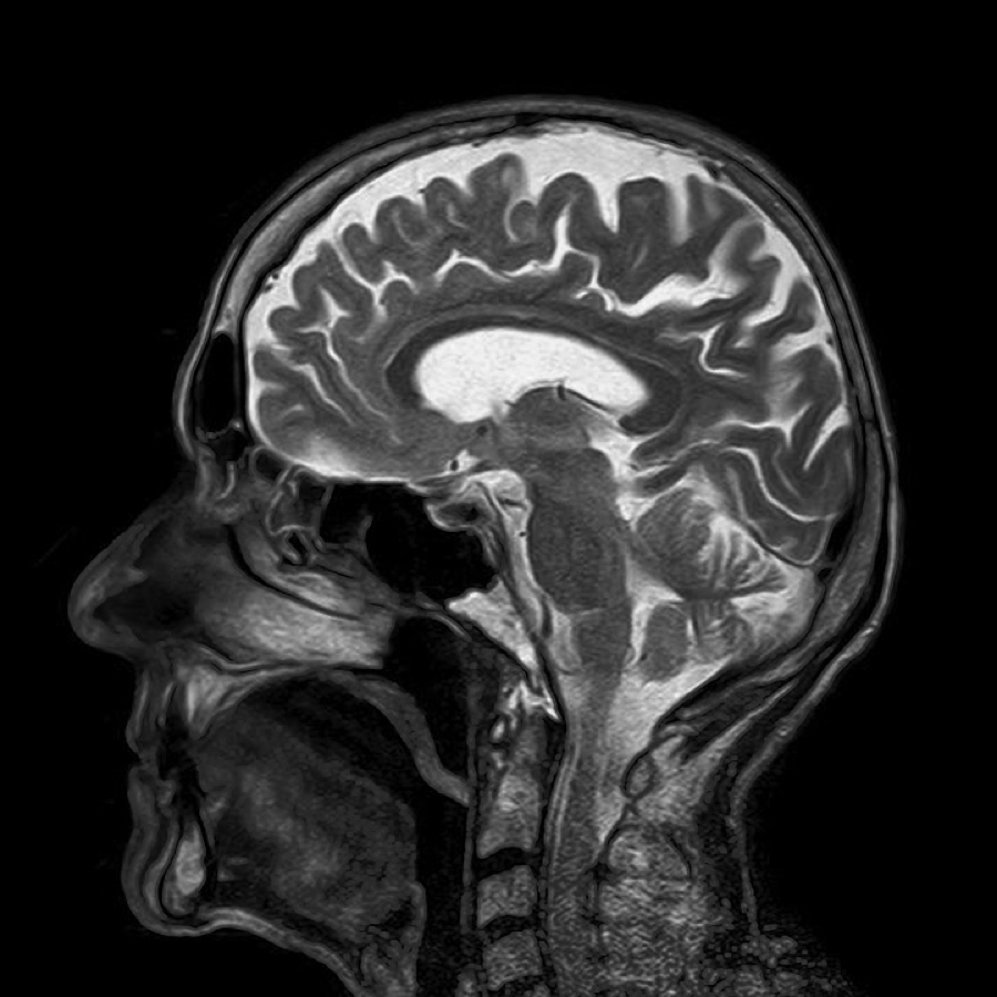Safer way to administer brain MRIs