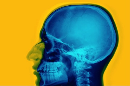 Newly found stem cells can repair damaged skulls