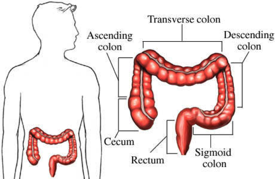 Tumor Location Predicts Survival Odds In Colon Cancer Cancer