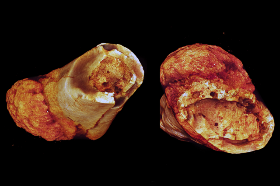 Million year old fossilized cancer in metatarsals | Image:  Edward Odes (Wits)