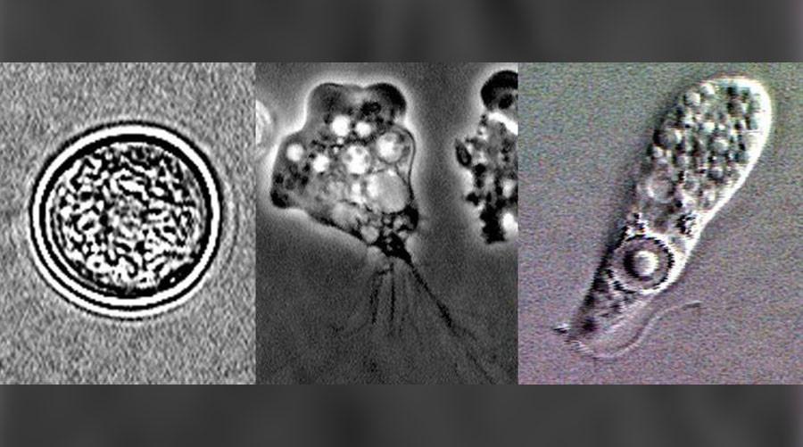 How a tiny amoeba can destroy the brain | Image: wikimedia