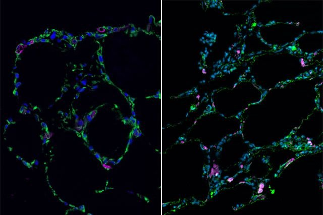 Lab-grown lung-like tissue (left) resembles adult human lung (right) | Image: UCLA