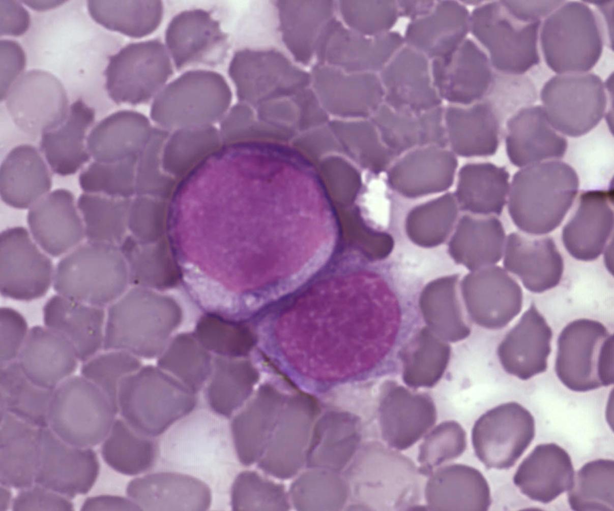 Leukemia cells. / Credit: A Surprising New Path to Tumor Development. PLoS Biol 3/12/2005 doi:10.1371/journal.pbio.0030433