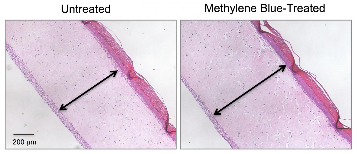 Cross-section images show 3D human skin models made of living skin cells. Untreated model skin (left panel) shows a thinner dermis layer (black arrow) compared with model skin treated with the antioxidant methylene blue (right panel). / Credit: Zheng-Mei Xiong/University of Maryland