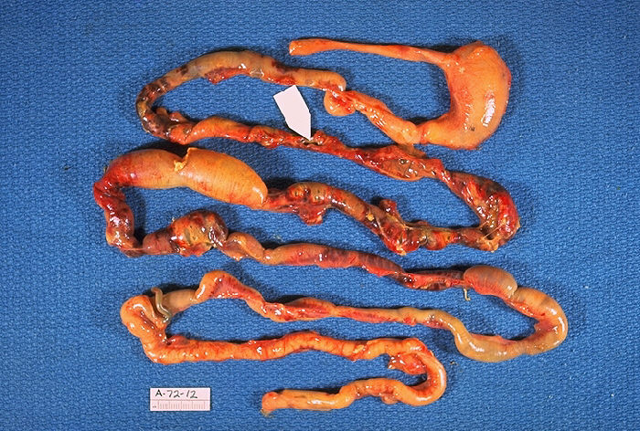 Intestines damaged by necrotizing enterocolitis.
