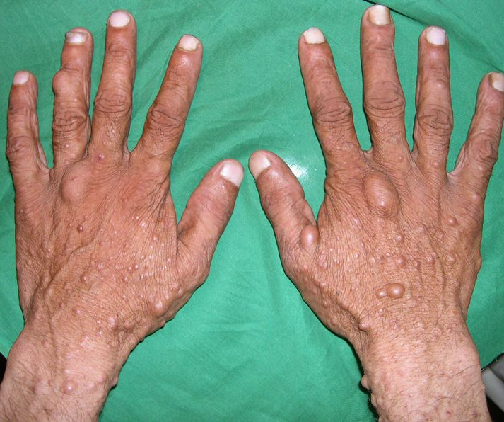 Skin lesions common in cases of neurofibromatosis