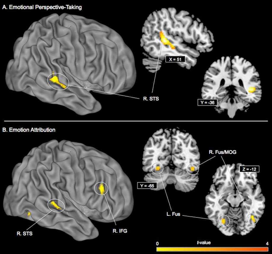 Oxytocin DNA methylation and brain activity during social-cognitive processing (A) emotional perspective-taking (B) emotion attribution.