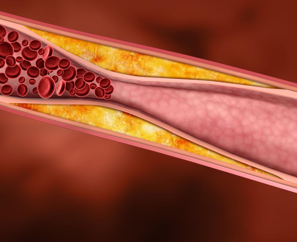 Plaque buildup disrupting blood flow