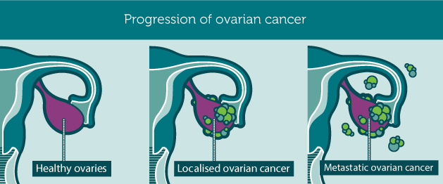 Credit: ovariancancerday.org