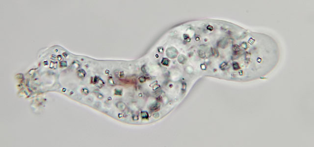 Protists like this one prey on bacteria.