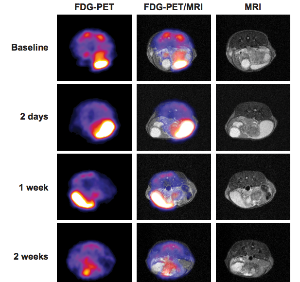 Representative FDG-PET/MRI co-registration images showing the impact of cabozantinib on regression of prostate tumors in Pb-Cre; PTENfl/fl/p53fl/fl mice. / Credit: Cancer Discovery Patnaik et al 2017