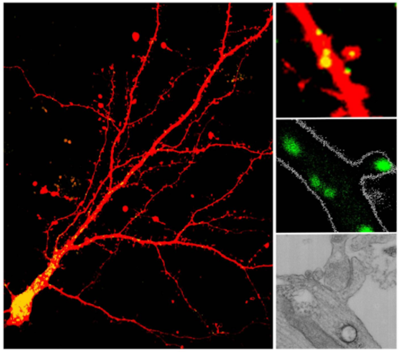 Lysosomes were identified in dendrites and dendritic spines using various techniques. Cultured neurons show lysosomes throughout neurons and in dendritic spines indicated in yellow (left and upper right); brain slices show a lysosome in the head of the spine highlighted in green (middle right); and transmission electron microscopy reveals a lysosome (black circle) near the base of a spine (bottom right). / Credit: Marisa Goo, Gentry Patrick/UCSD/Journal of Cell Biology