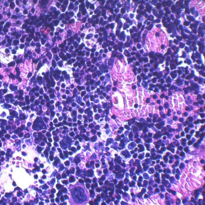 This microscopic image shows bone marrow cellularity and composition in a non-obese control mouse/ Credit: Cincinnati Children's