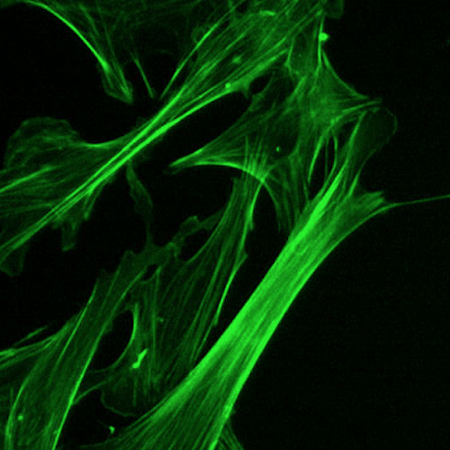 Microfilament (actin cytoskeleton) of mouse embryo fibroblasts, stained with FITC-phalloidin (100-fold magnification.)/ Credit: Wikimedia Commons/Y tambe
