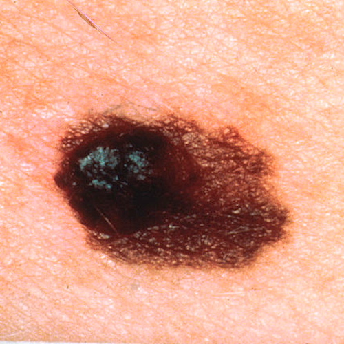 Asymmetrical melanoma, the left side of the lesion is much thicker than the right side. / Credit: Wikimedia Commons/Skin Cancer Foundation