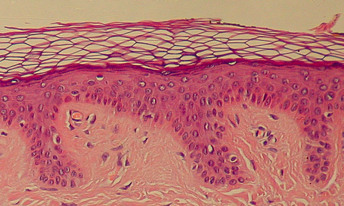 The interstitium was found in connective tissue, including the dermis (the middle, dark layer) / Image credit: Wikimedia Commons