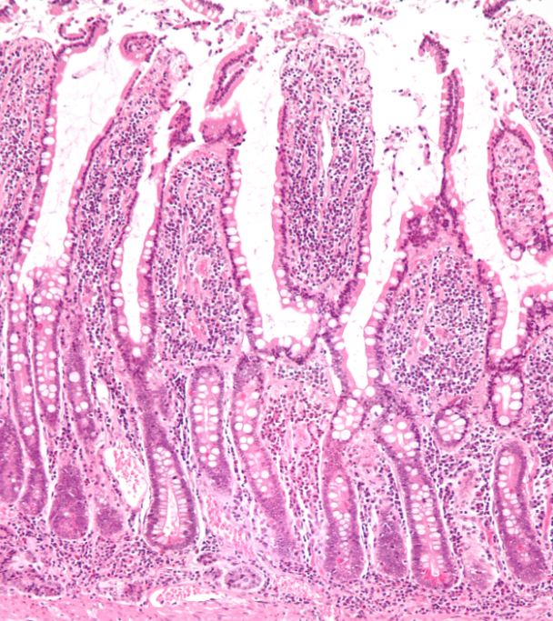 Low magnification micrograph of small intestinal mucosa. H&E stain. / Credit: Wikimedia Commons/Nephron