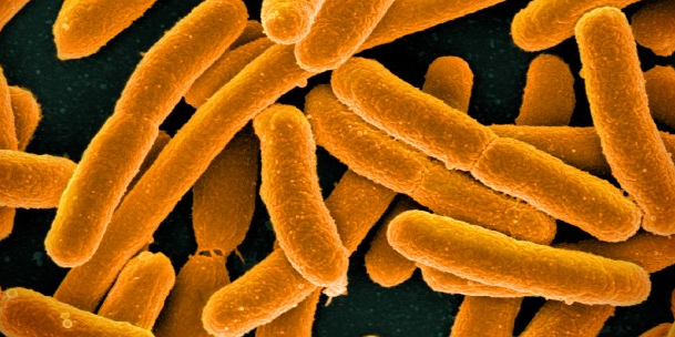 Colorized scanning electron micrograph of Escherichia coli / Image credit: NIAID