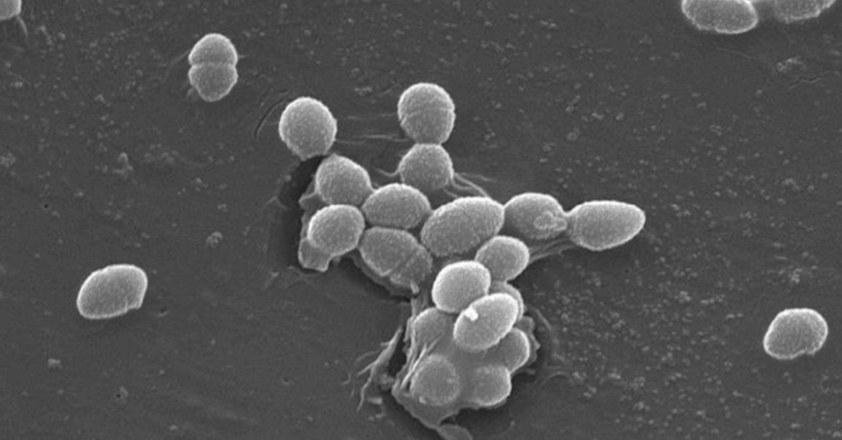 Scanning Electron Micrograph of Enterococcus faecalis, a common gut microbe / Credit: CDC / Pete Wardell
