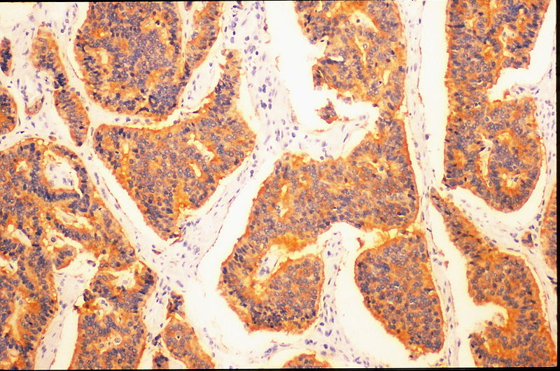 Histopathology of small cell lung carcinoma. Credit: Yale Rosen