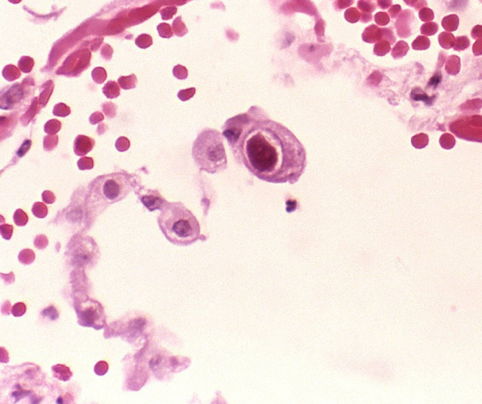 Cytomegalovirus infection of a lung cell. Credit: CDC Public Health Image Library
