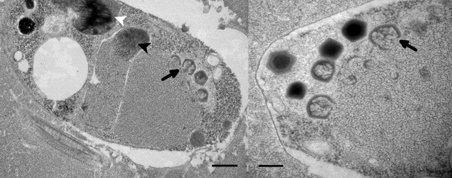 This is a cell of Bodo saltan 24 hours after BsV infection (Left) and BsV virion assembly and maturation (Right). / Credit: Christoph Deeg, Curtis Suttle, University of British Columbia
