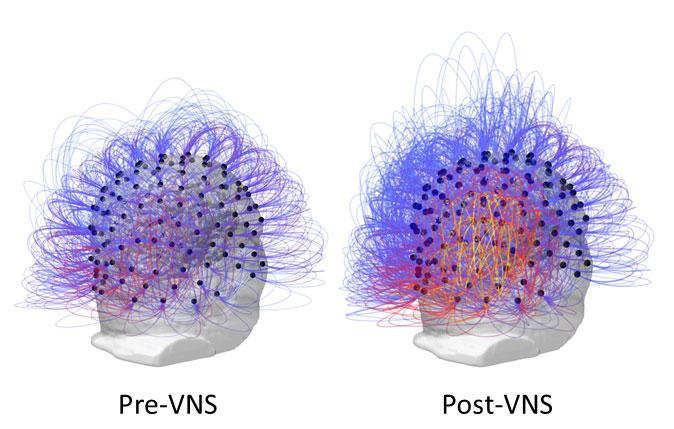 This figure shows information sharing across all electrodes before and after vagus nerve stimulation (VNS). On the right, the warmer colors (yellow/orange) indicate an increase of connectivity among posterior parietal regions. / Credit: Corazzol et al.