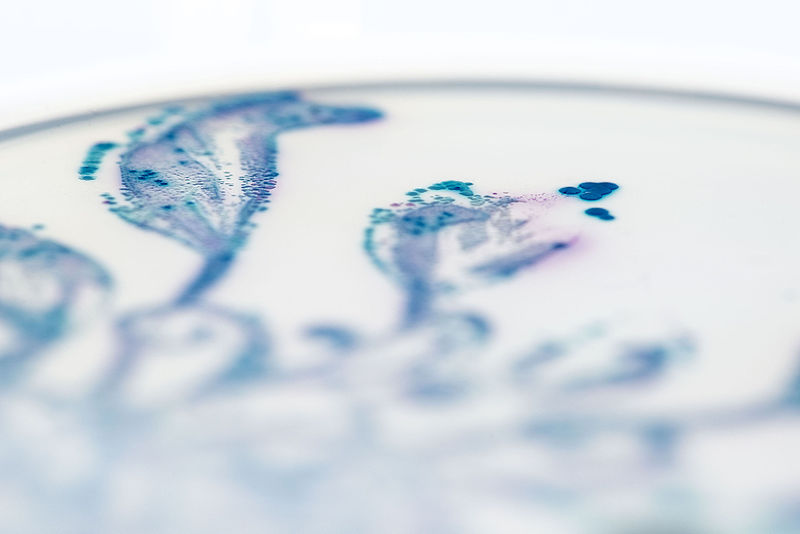 Gut bacteria, grown on color-changing agar in striking, [with] organic patterns to suggest that bacteria, rather than 'good' or 'bad', should be viewed like the plants around us, where diversity, and balance is key to health. Credit: Nicola Fawcett