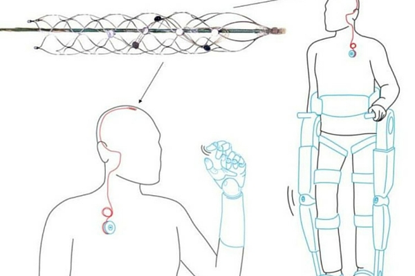 A new implantable device could control an exoskeleton