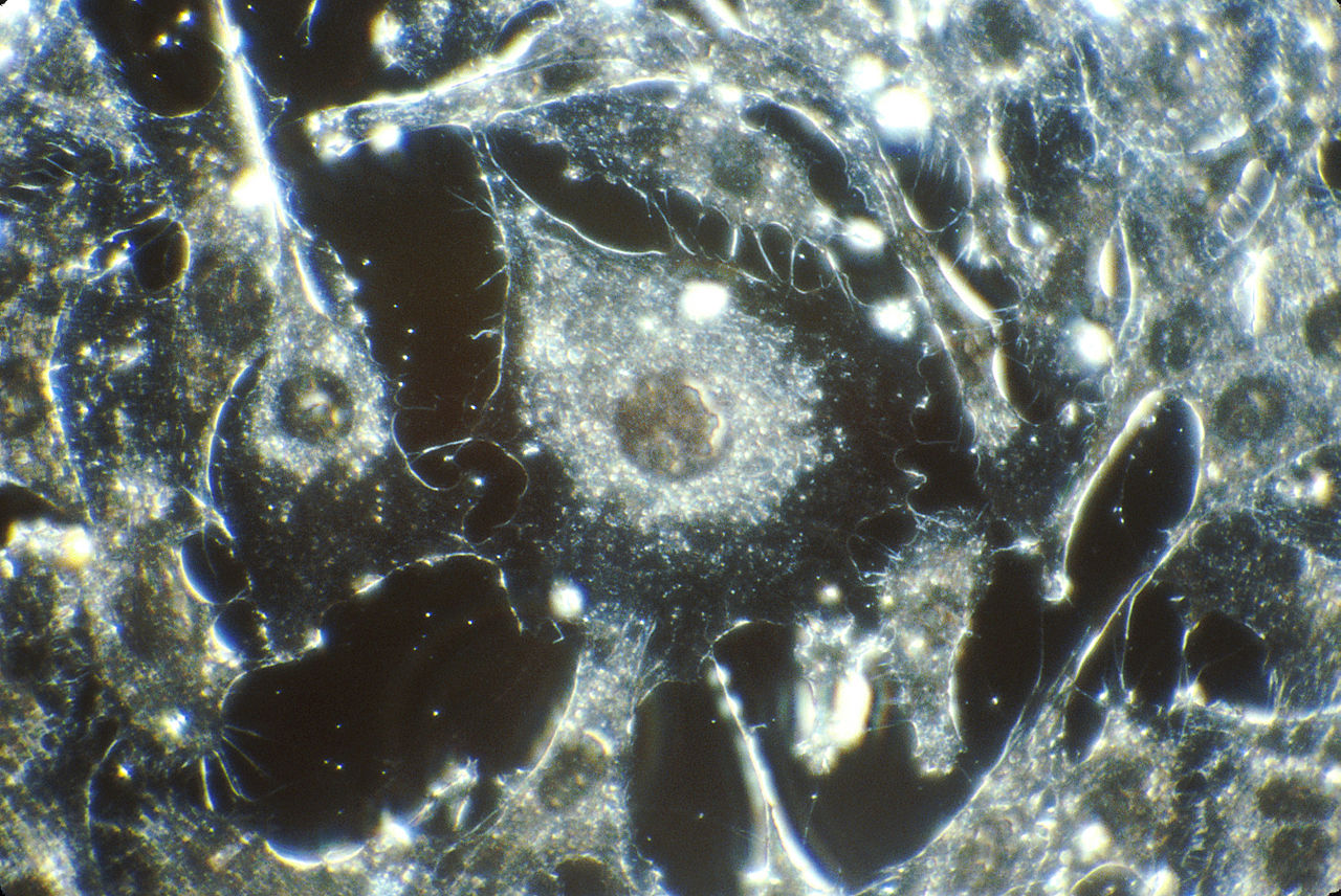 Cancer cells in tissue culture from human connective tissue, illuminated by darkfield amplified contrast, at a magnification of 500x. Source: National Cancer Institute