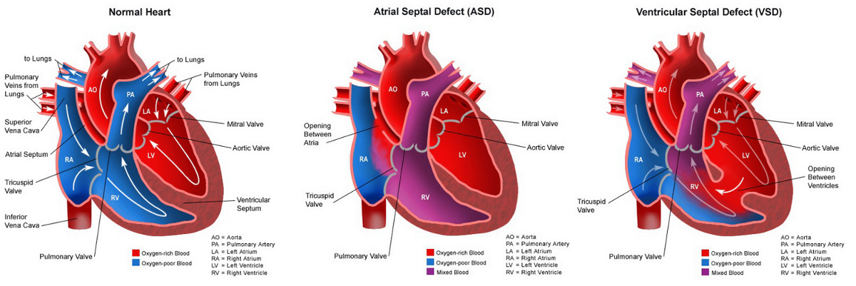 Helping women with congenital heart defects through a healthy pregnancy ccuart Choice Image