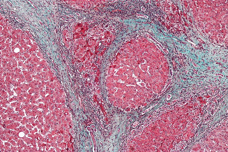 High magnification micrograph of a liver with cirrhosis. / Credit: Wikimedia Commons/Nephron