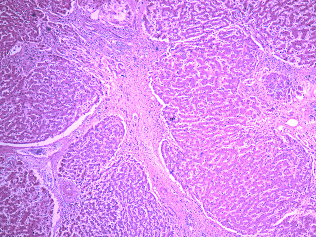 Damaged liver tissue due to cirrhosis | Image: Yale