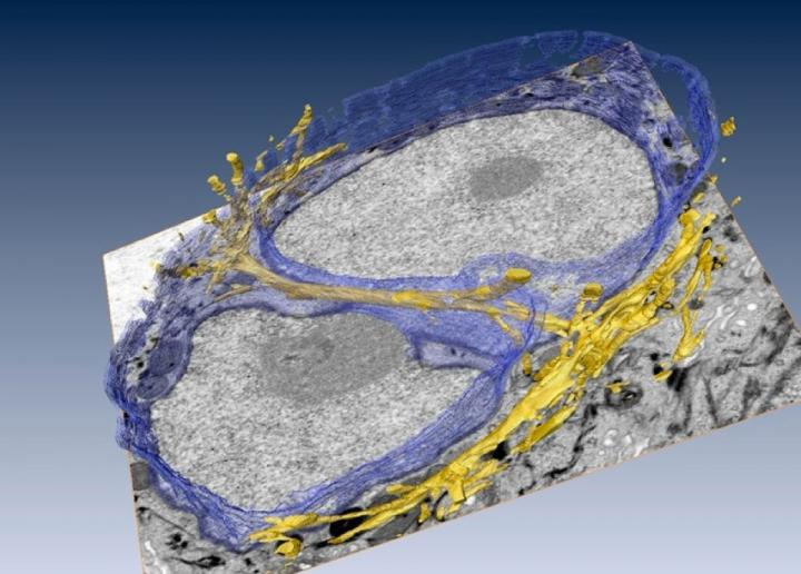 The 3-D architecture of cytofilament bundles (in gold) tunneling through a cell's nucleus. The nuclear membrane is shown / Credit: Manfred Auer/Berkeley Lab